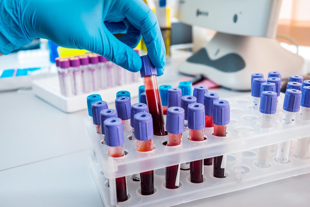 Ученые выяснили, обладатели какой группы крови имеют самое слабое здоровье.Вокруг Света. Украина