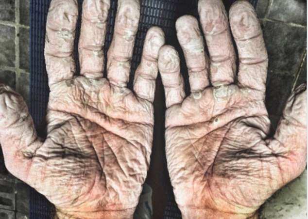 Олимпийский чемпион показал, во что превращает руки мороз Арктики