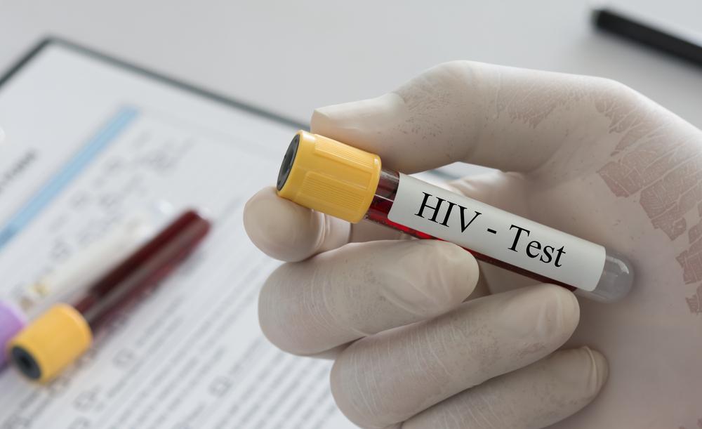 Созданы антитела, убивающие 99% штаммов ВИЧ