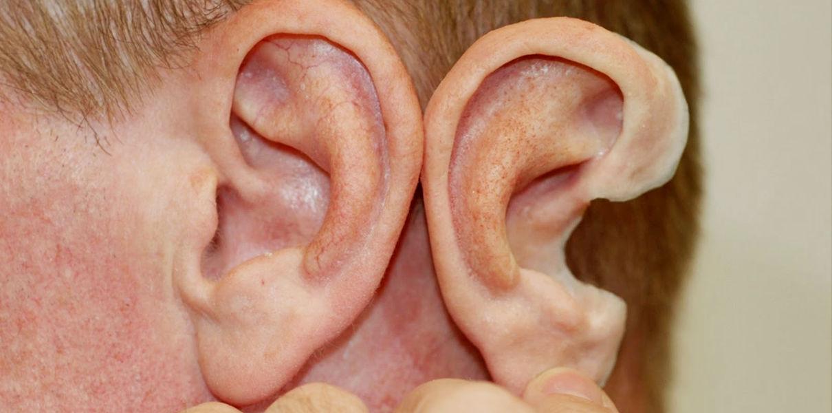 Китайские ученые вырастили детям новые уши.Вокруг Света. Украина