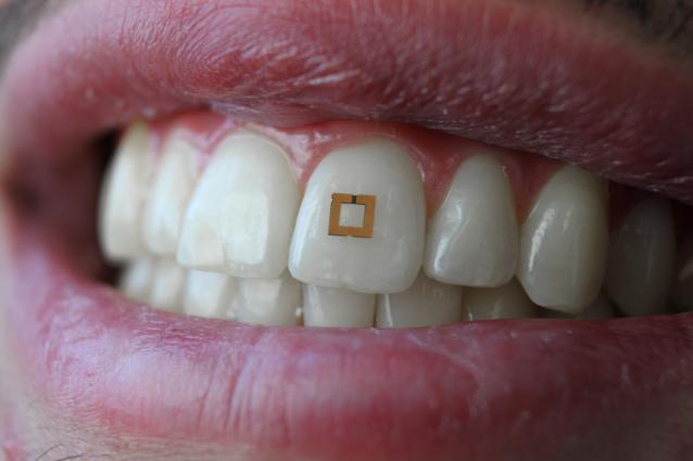 На один зуб: изобрели сенсор, способный следить за диетой