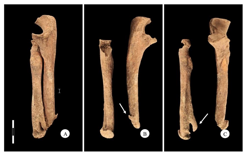 В Италии нашли скелет средневекового Эдварда Руки-ножницы В Италии нашли скелет средневекового Эдварда Руки-ножницы kosti