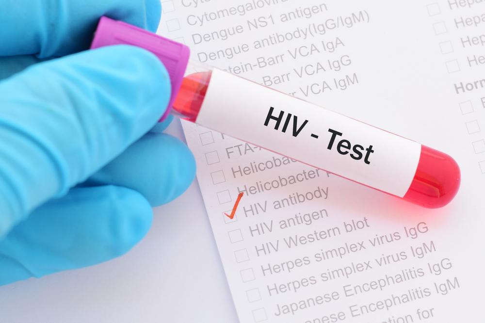 Новое открытие защитит женщин от ВИЧ