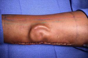 Армейские хирурги впервые вырастили новое ухо в руке солдата