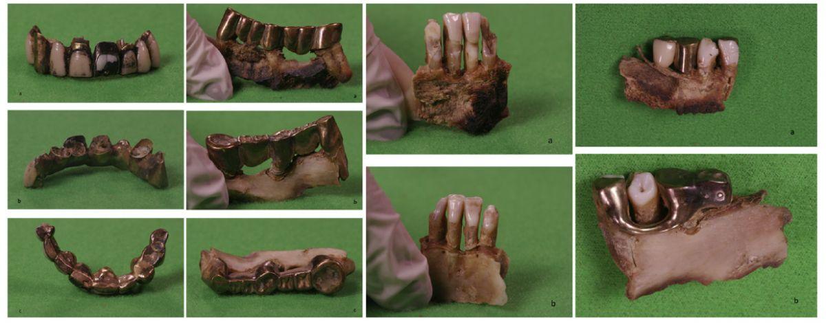 Зубы Гитлера опровергли теорию заговора Зубы Гитлера опровергли теорию заговора zuby