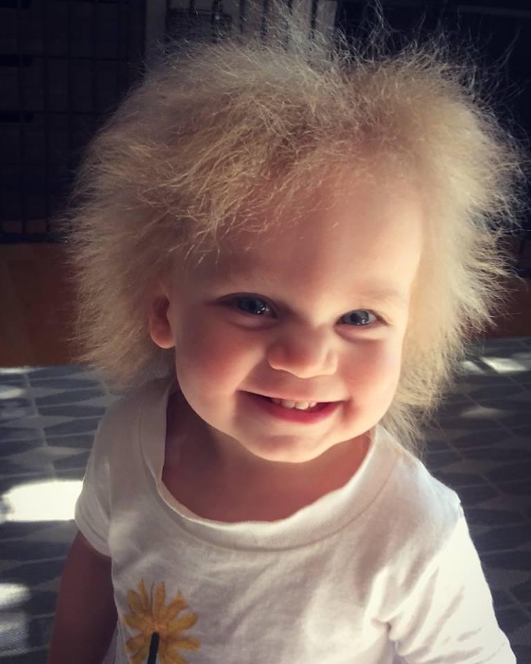 Взрыв на макаронной фабрике: что такое синдром нерасчесывающихся волос Взрыв на макаронной фабрике: что такое синдром нерасчесывающихся волос 35330168 247911595963733 5330766352409952256 n
