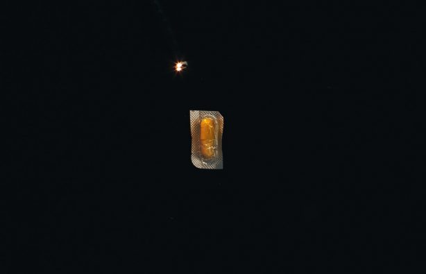 Зажигалки, гвозди и карандаши: что врачи вытаскивают из людей Зажигалки, гвозди и карандаши: что врачи вытаскивают из людей endoskopist 07 614x395