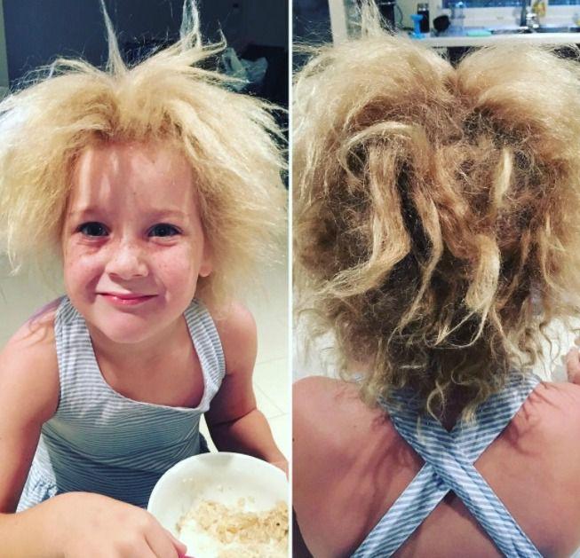 Взрыв на макаронной фабрике: что такое синдром нерасчесывающихся волос Взрыв на макаронной фабрике: что такое синдром нерасчесывающихся волос uncombable hair syndrome