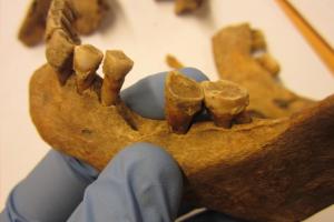 Зубной камень раскрыл тайны жизни в средневековой Европе