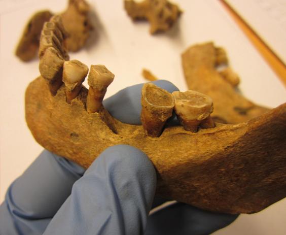 Зубной камень раскрыл тайны жизни в средневековой Европе.Вокруг Света. Украина