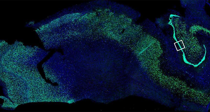 Ученые выявили признаки нейрогенеза в мозге взрослого