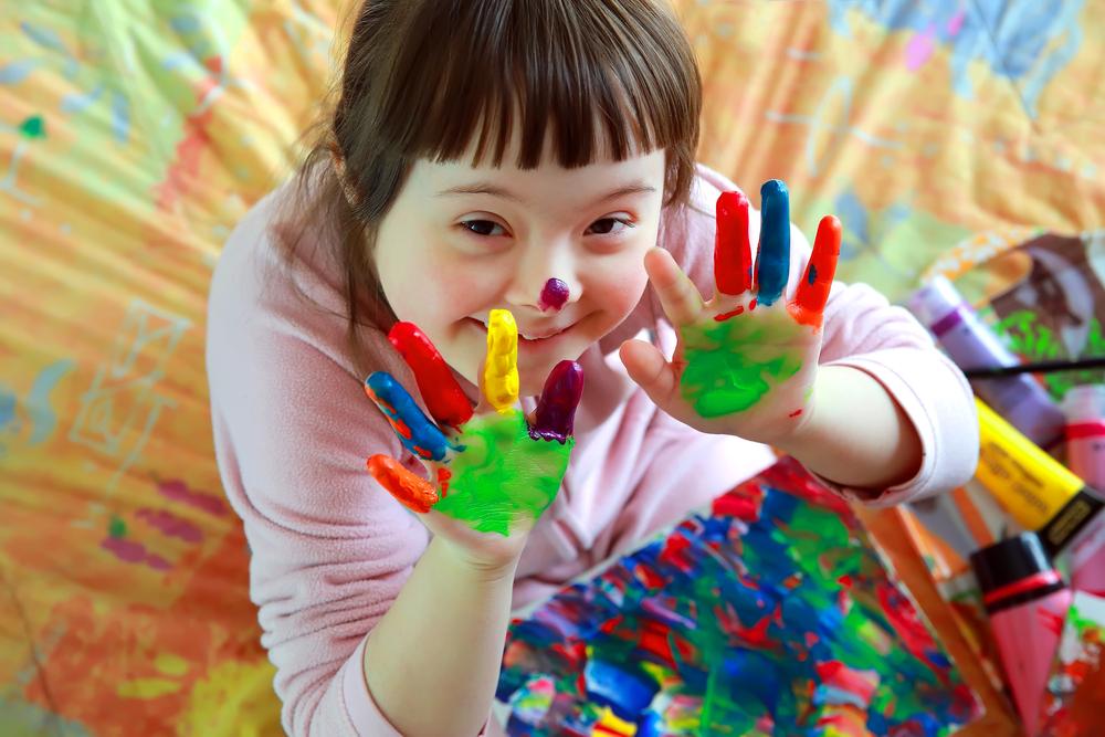 Международный день людей с синдромом Дауна