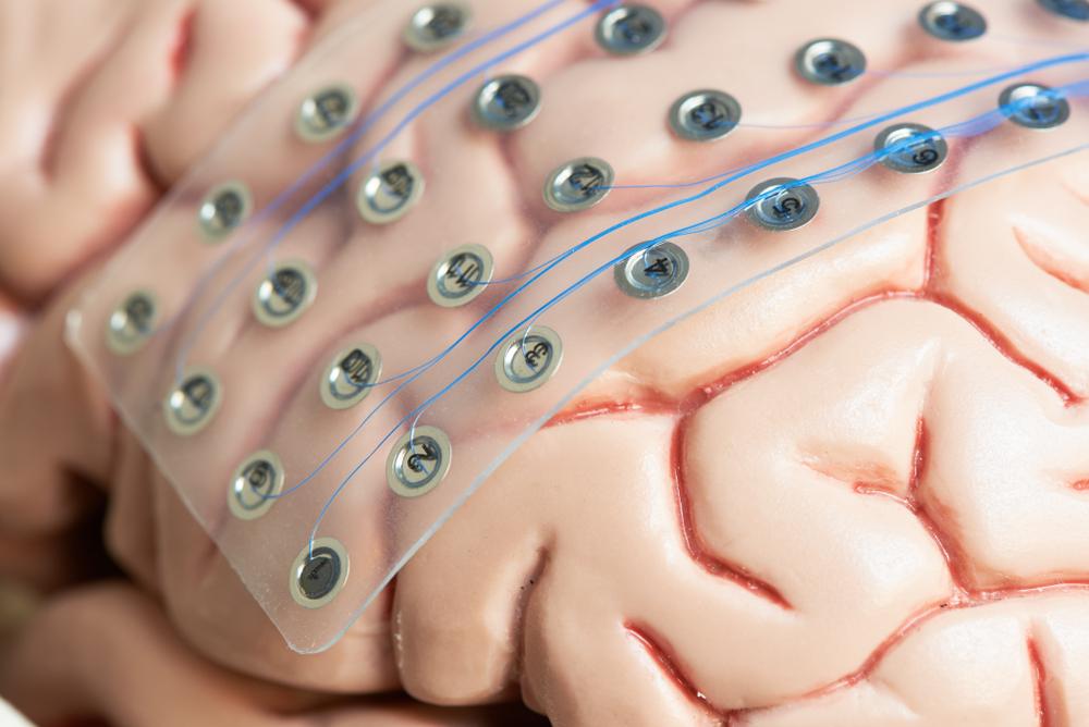 Ученые смогли частично оживить мозг мертвой свиньи.Вокруг Света. Украина