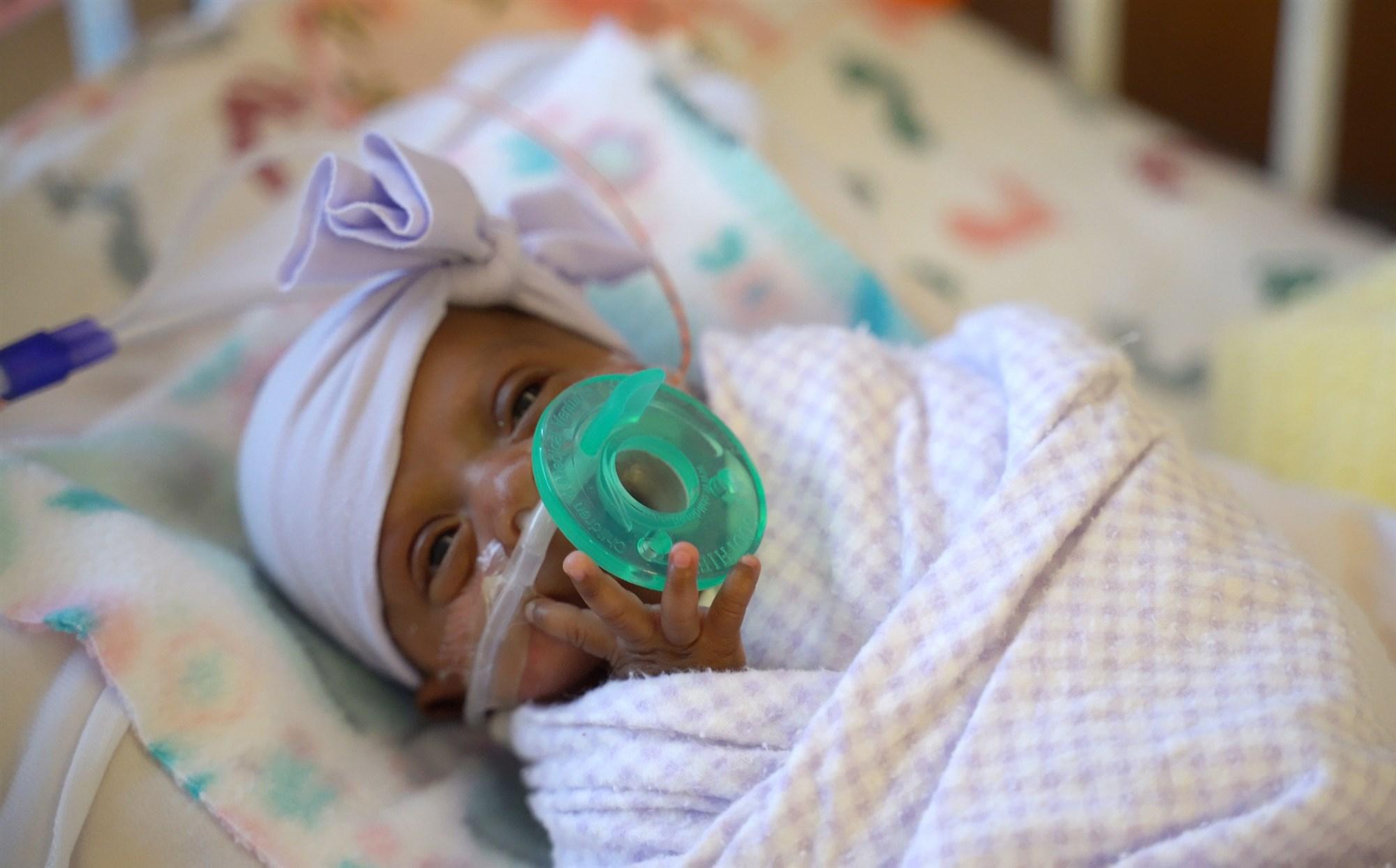 В США родилась самая маленькая девочка в мире