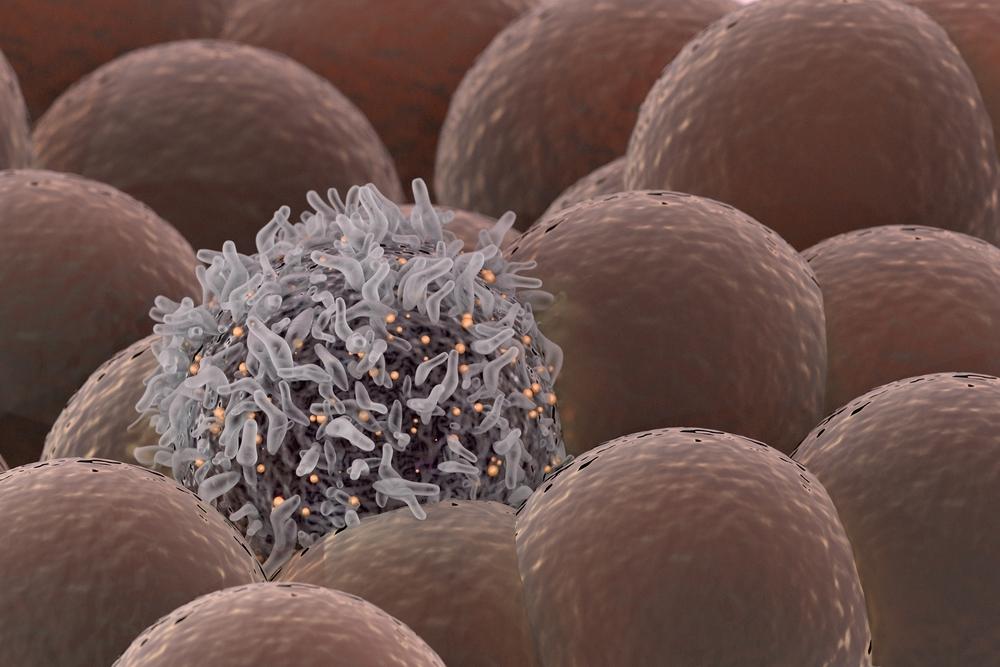 Разработан лазер, который находит и уничтожает раковые клетки в крови