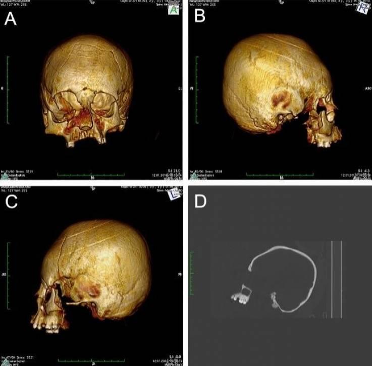 В Хорватии обнаружили три древних искусственно деформированных черепа