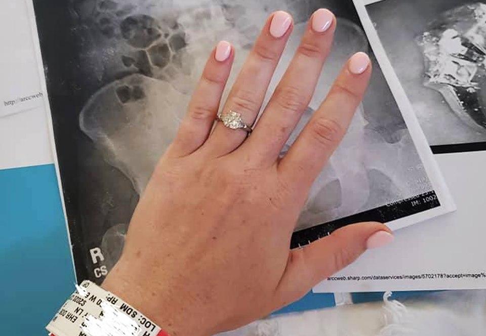 Американка проглотила кольцо во сне, а оказалось - и наяву