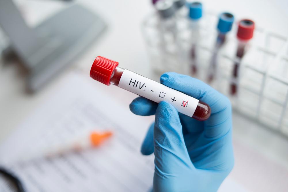 Впервые за 19 лет обнаружен новый штамм ВИЧ