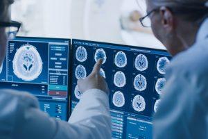 Мозг людей с аутизмом более симметричен