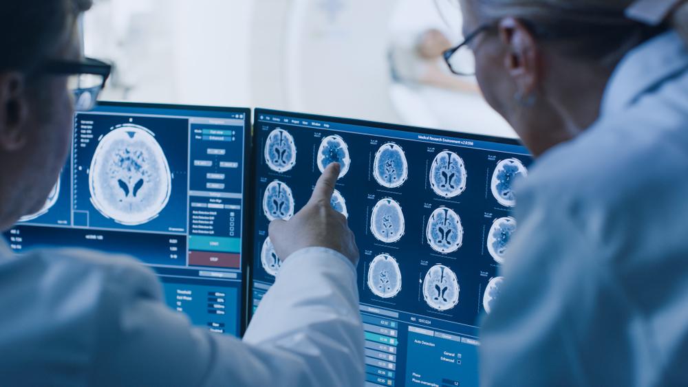 Мозг людей с аутизмом более симметричен.Вокруг Света. Украина