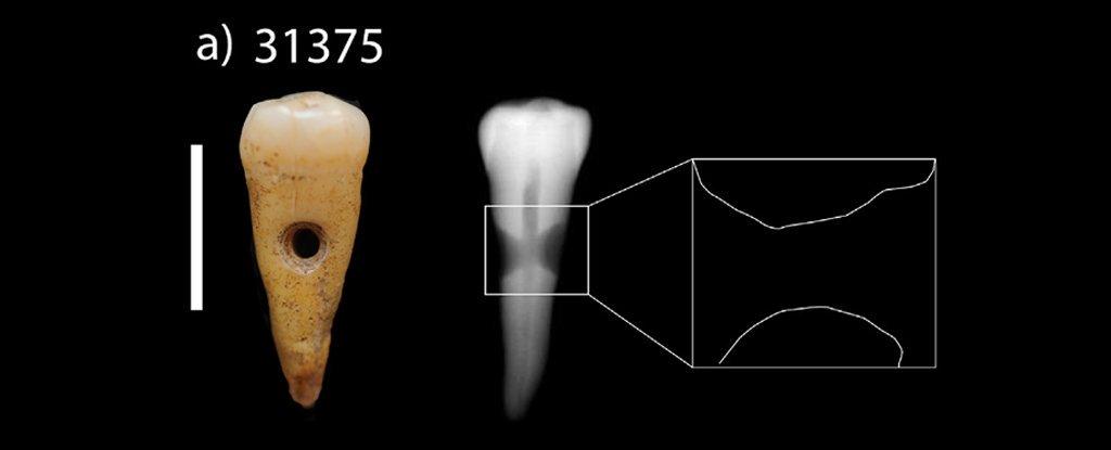 В эпоху неолита на Ближнем Востоке делали украшения из человеческих зубов