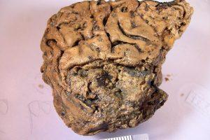 Ученые выяснили секрет сохранности 2600-летнего мозга из Хеслингтона