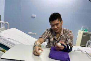 Во Вьетнаме впервые в мире пересадили руку от живого донора