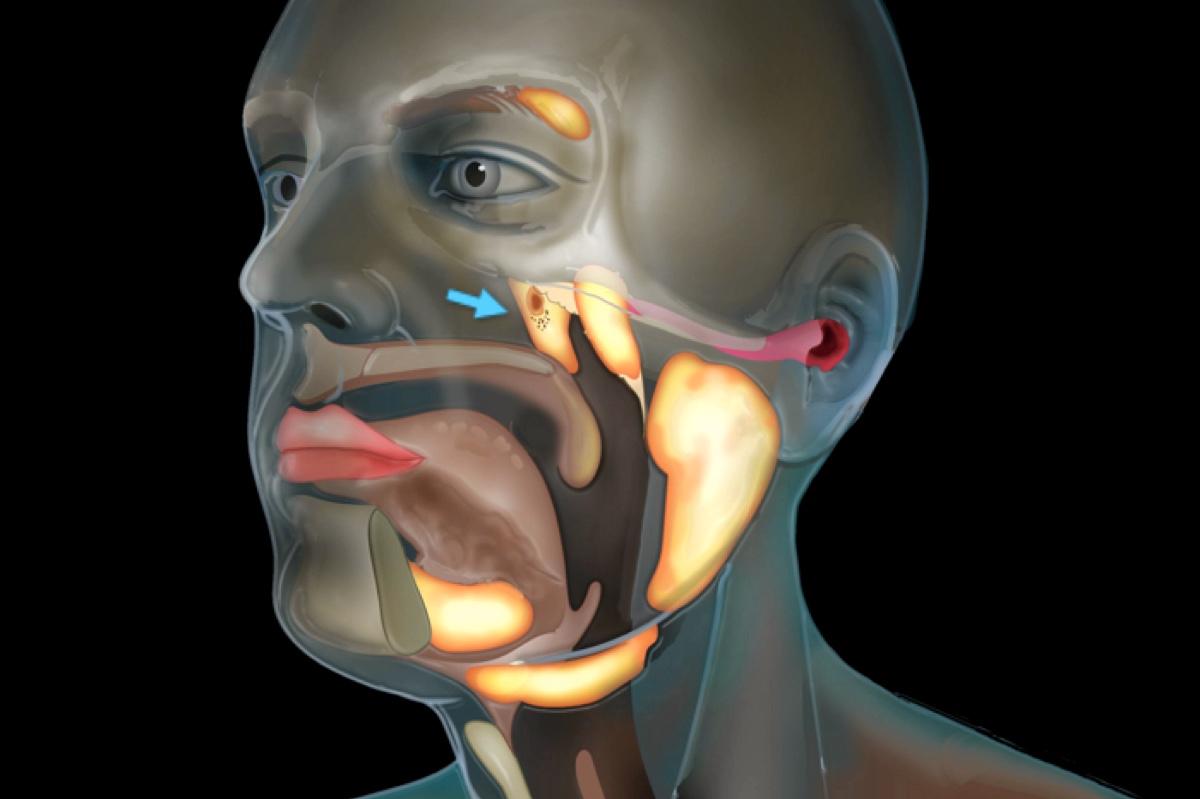 Медики обнаружили неизвестный орган человеческого тела.Вокруг Света. Украина