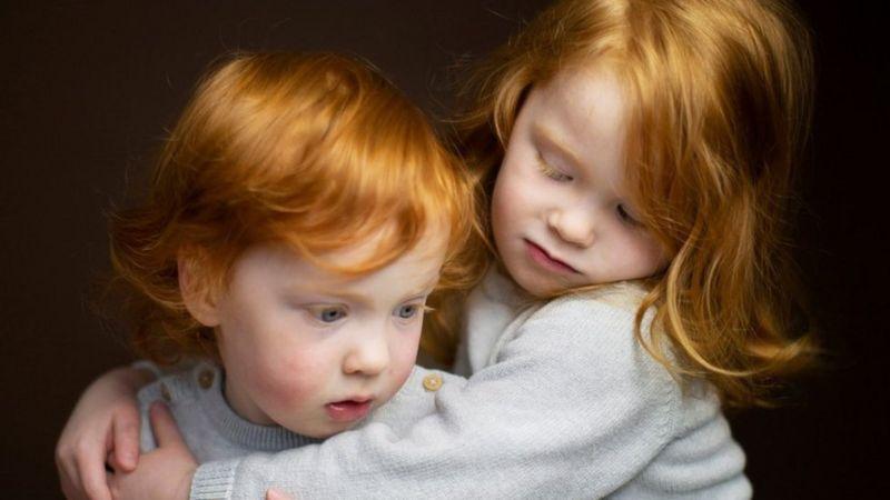 Рыжие люди мира: такие похожие и разные – уникальный фотопроект