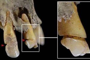 Анализ зубов рассказал о профессии древних жительниц Испании
