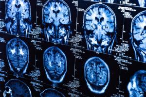 Мозг осторожного человека отличается от мозга любителя риска