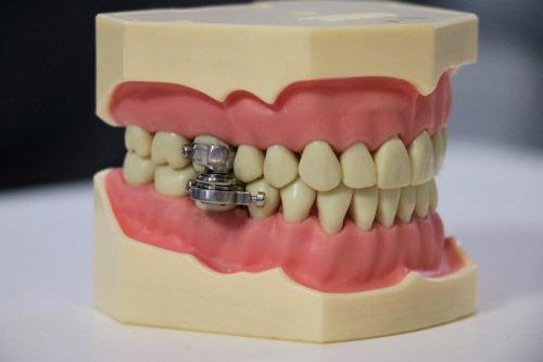 Стоматологи придумали устройство для похудения