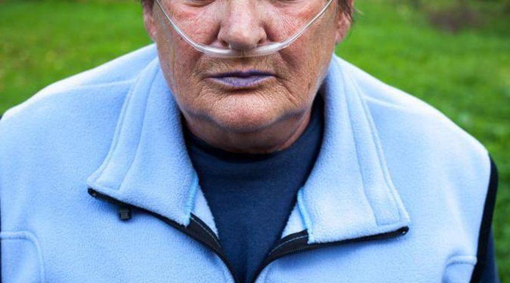 Почему синеют губы и что нужно делать, если это случилось?
