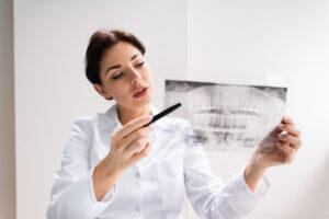 Удаление зубов мудрости делает еду вкуснее