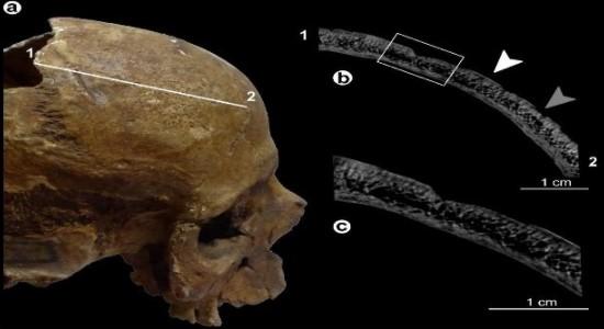 Археологи поставили диагноз мужчине, умершему более 4 тысяч лет назад.Вокруг Света. Украина