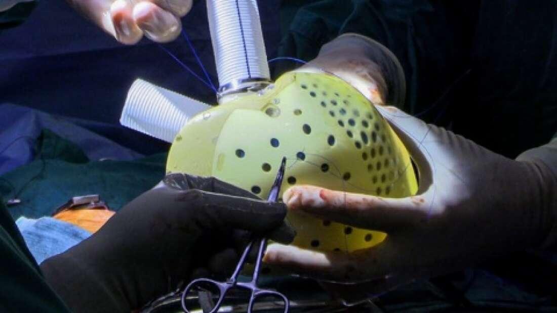В США впервые в мире успешно пересадили искусственное сердце