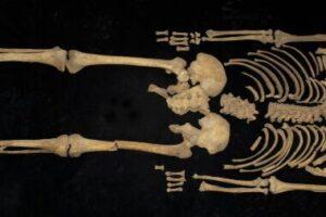Археологи нашли останки древнего китайца, которому в наказание ампутировали ногу